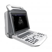 Quality Battery Supported General Imaging Ultrasound Speckle Noise Reduction Technology for sale
