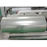Quality Hospital printing Screen Printing Film for Colour Doppler Ultrasound / CT results for sale