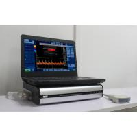 China Small and light Portable Color Doppler Ultrasound Box connectingwith computer's USB laser/inkjet printers on sale
