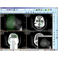 Best 8 x 10inch Medical Paper Laser X Ray Diagnostic Imaging For KND-DRYTEC 4000 wholesale