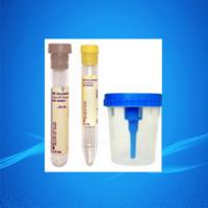 China Urine Container/Urine Specimen Cups/Urine Cups on sale