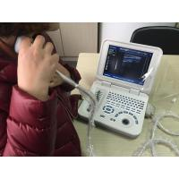 128 Images Permanent Storage Portable Digital Ultrasound Scanner with 10.8 Inch LED Screen
