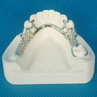 Quality dental framework/metal denture/metal framework for sale
