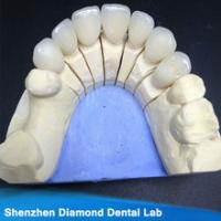 Quality zirconia crown/all ceramic zirconia/all ceramic restoration for sale