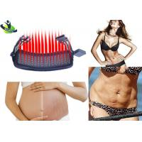 Quality Portable Laser Stretch Mark Removal , CE Pregnancy Laser For Stretch Marks for sale