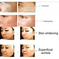 Remarkable treatment effect for Wrinkle Remover and skin rejuvenation professional rf co2 fractional laser beauty machine